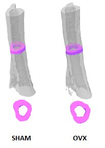 Imaging_Bone dynamics microCT Tibia